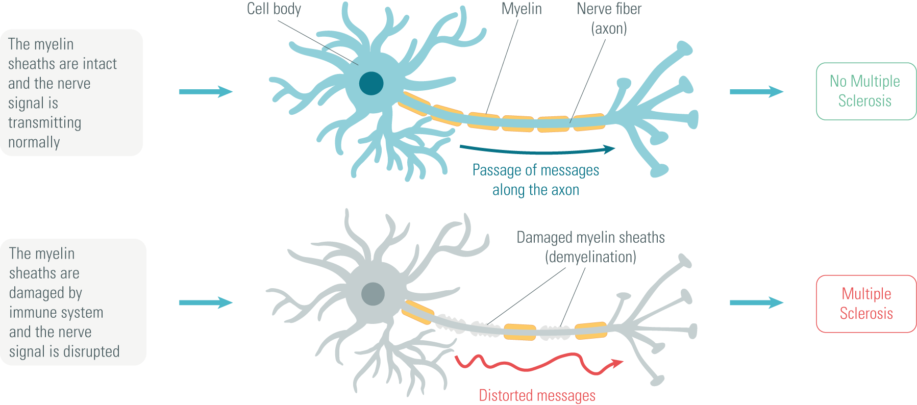 Normal Healthy Neuron and Demyelinated Neuron in Multiple Sclerosis